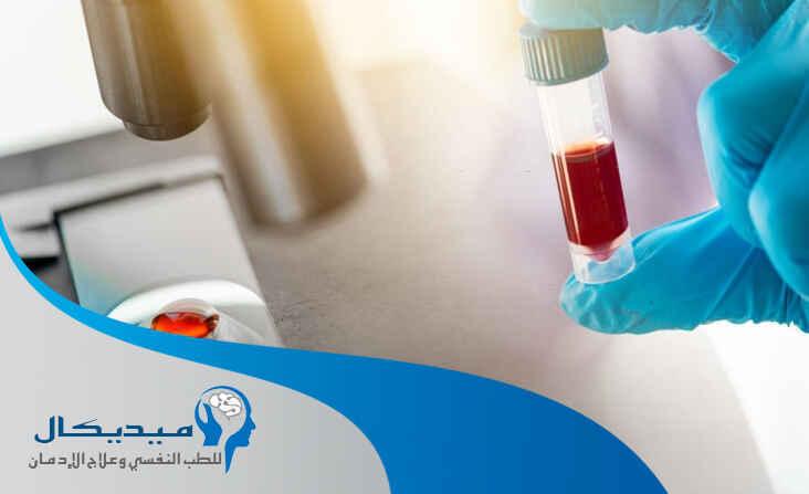 مدة بقاء المورفين في الدم وابطال مفعول المورفين في الجسم